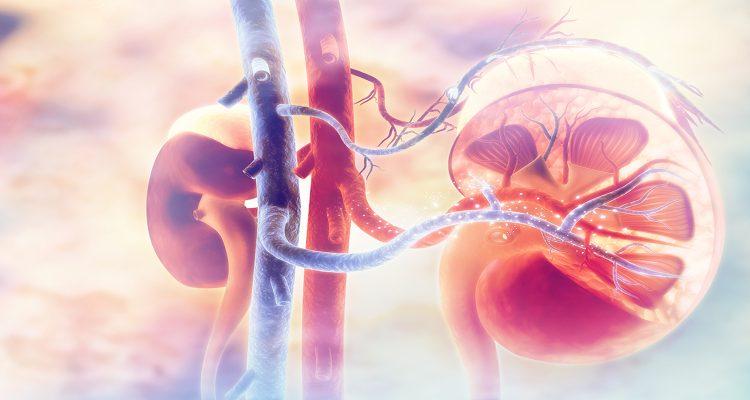 How To Choose The Best Kidney Transplant Program In Pakistan?